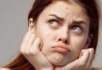 Прыщи на лбу: как быстро избавиться