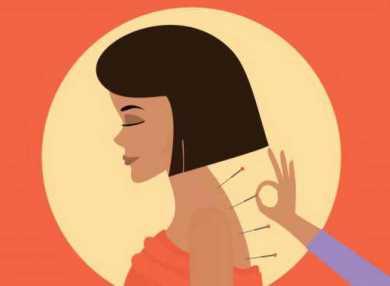 Иглоукалывание — какая от него польза