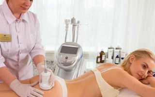 Ультразвуковая кавитация – плюсы и минусы процедуры