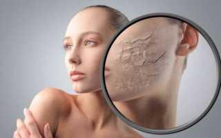 Шелушится кожа на лице — наши советы вам помогут