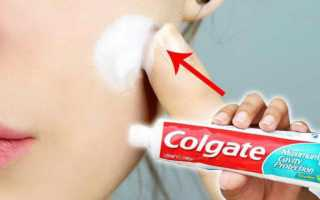 Зубная паста от прыщей: эффективность, рецепты