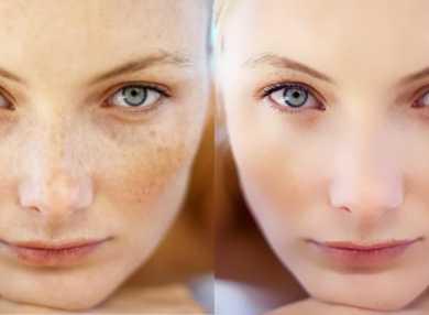 Как пользоваться отбеливающим кремом для лица и как его правильно подобрать