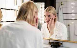 Как избавиться от прыщей на лице: советы дерматолога