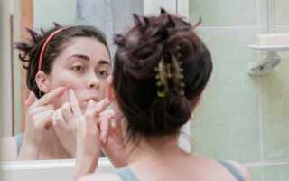 Прыщи на щеках: причины, лечение