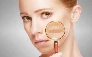 Прыщи на лице: за какие органы отвечают
