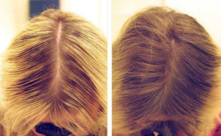 Отзывы о маске из кокосового масла для волос исключительно положительные, она дает прекрасный результат.
