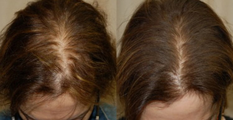 Маски для жирных волос с алоэ помогают также при выпадении волос.