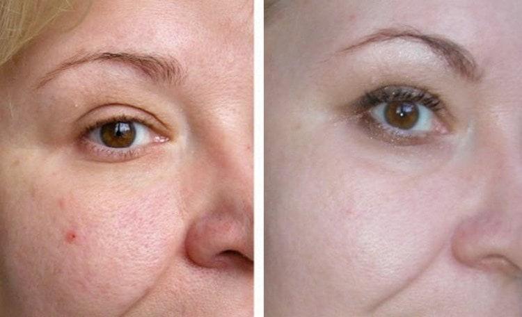 По отзывам косметологов, одними из лучших являются альгенатные маски для лица.