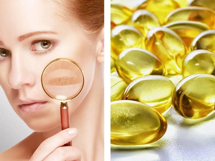 Чтобы польза маски из овсянки для лица была еще больше, можно в базовую смесь добавлять витамины.