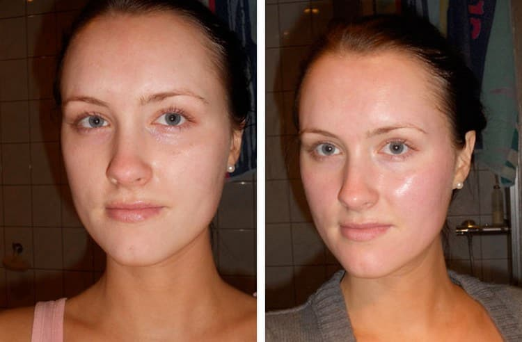 Процедура хорошо питает кожу, насыщает полезными веществами.