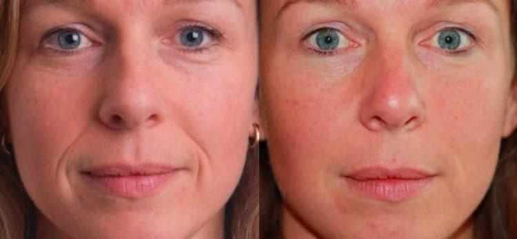 Результат желатиновой маски: до и после.