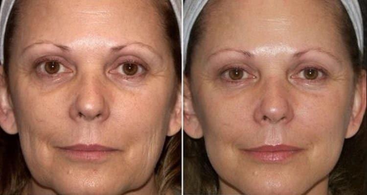 Эффект до и после маски.