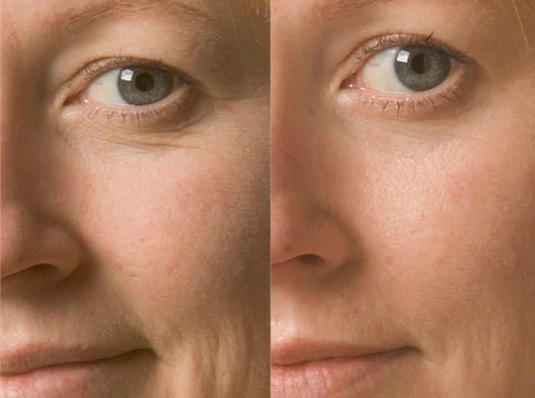 Эффект маски будет заметен не с первой процедуры, а приблизительно с четвертой.