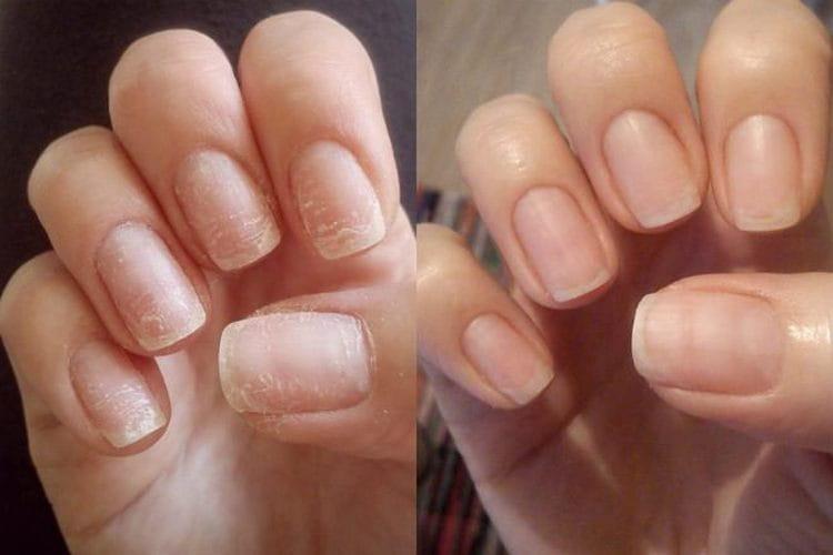 Ногти стали выглядеть нормально, перестали ломаться и слоиться.