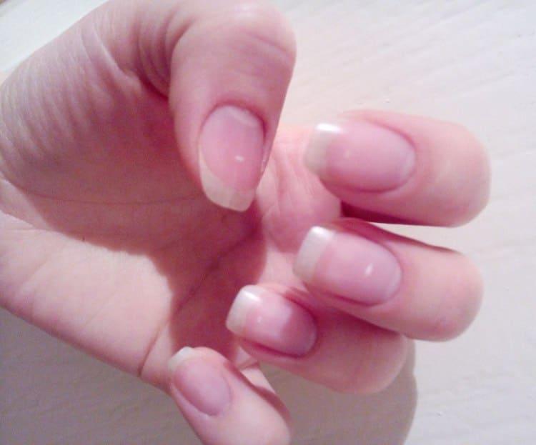 Очень эффективны витамины при слоящихся и ломких ногтях.