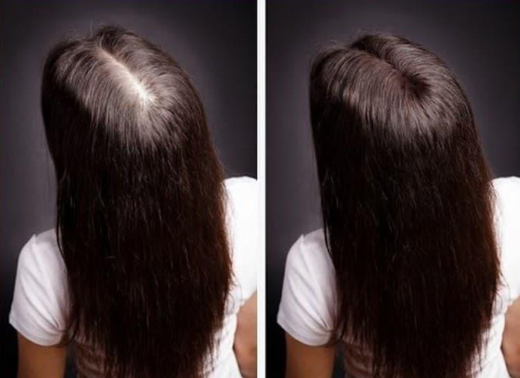Прочтите также отзывы о применении витаминов группы В для волос.