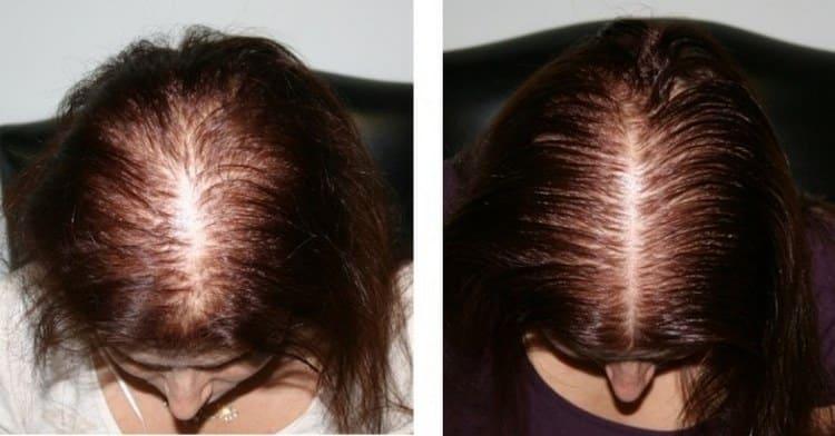 Витамины помогают справиться даже с сильным выпадением волос.