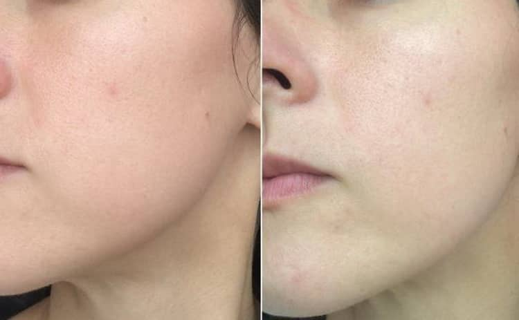 Как работает корейская кислородная маска для лица