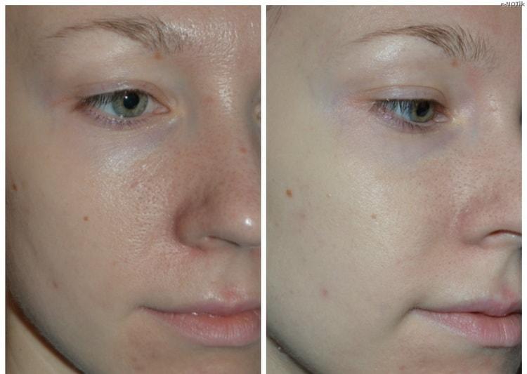 Маска для лица с алоэ – рецепты, отзывы и фото