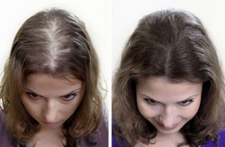 Польза маски для волос с льняным маслом