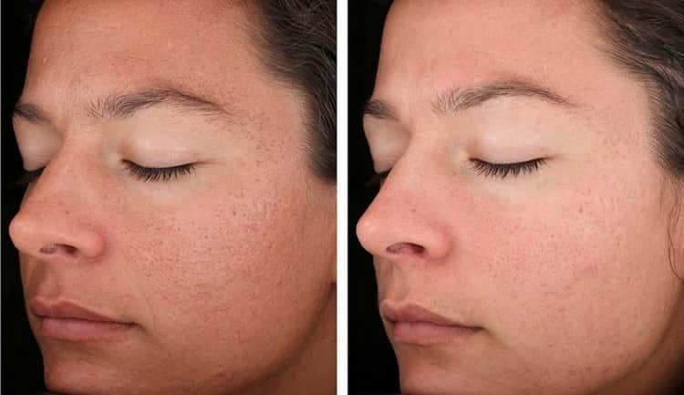 Поможет ли маска из белой глины для лица в борьбе с сухой кожей