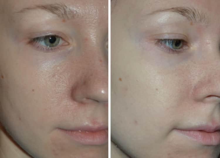 Как делается маска из белой глины для лица