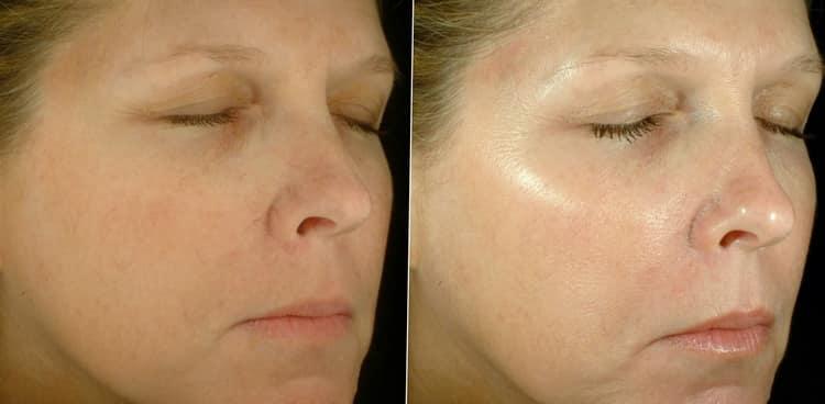 Как использовать многоразовые тканевые маски для лица
