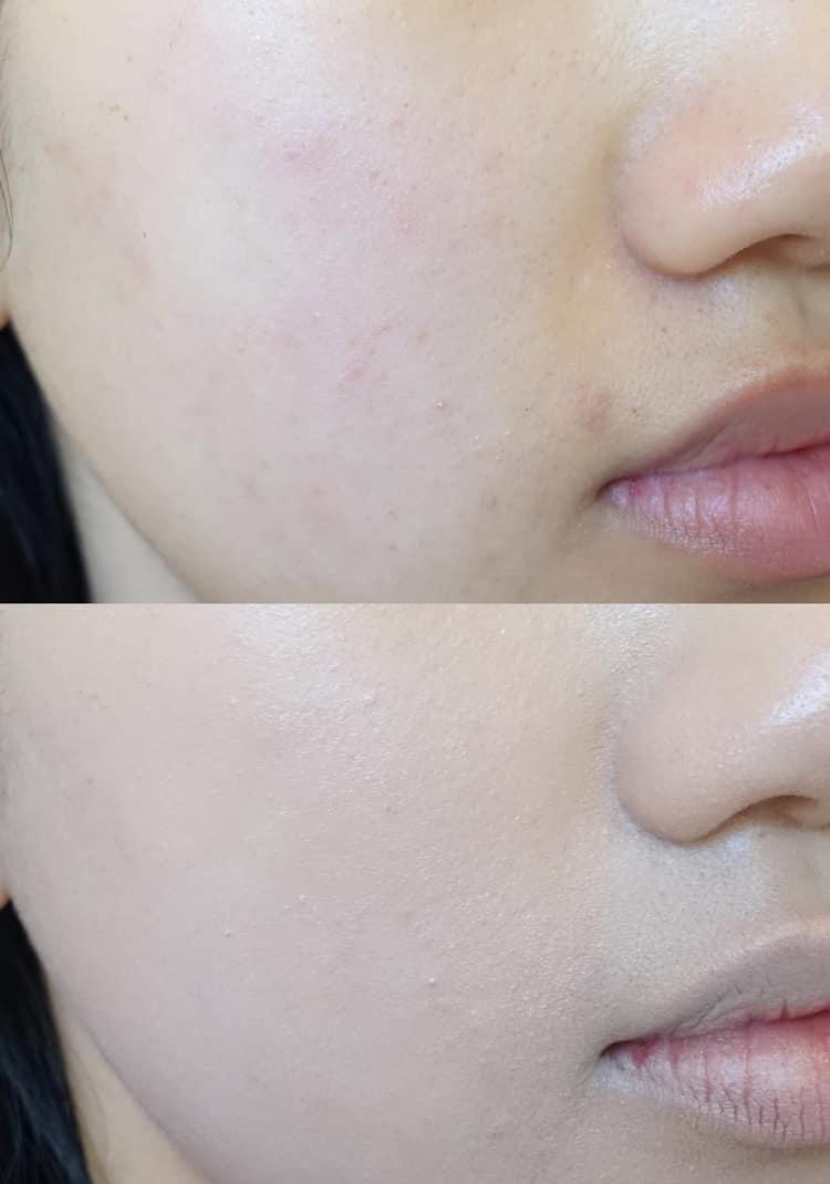 Корейские тканевые маски для лица, отзывы косметологов
