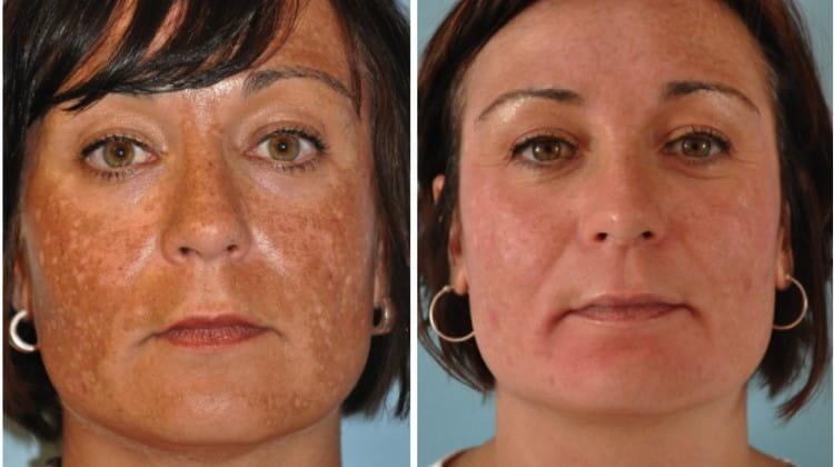 Средство также помогает избавиться от пигментации на лице.