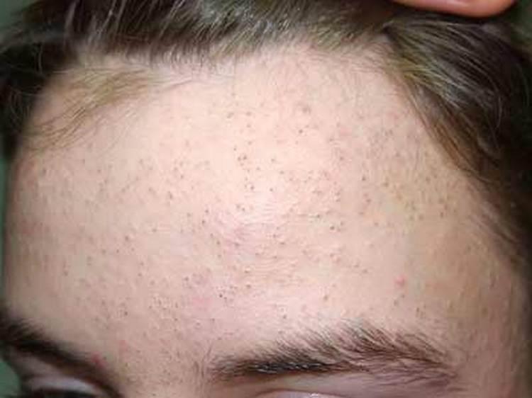 Такая чистка лица особенно показана при угревой сыпи.