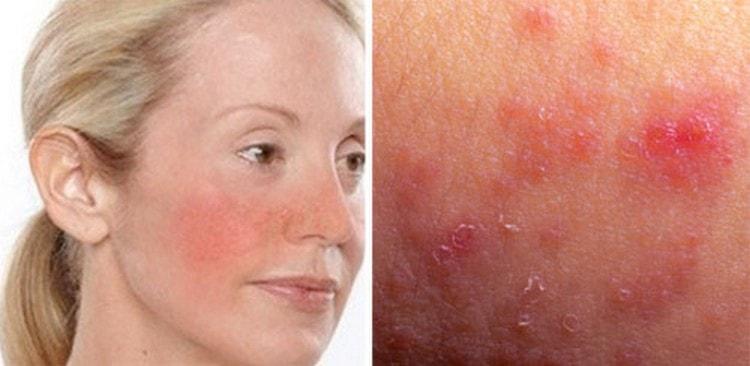 То, нужно ли делать чистку лица у косметолога, зависит от нежности и чувствительности кожи, ее проблем.