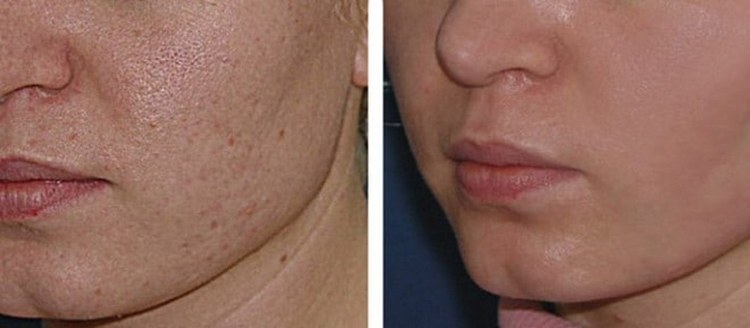 Посмотрите видео о чистке лица у косметолога.