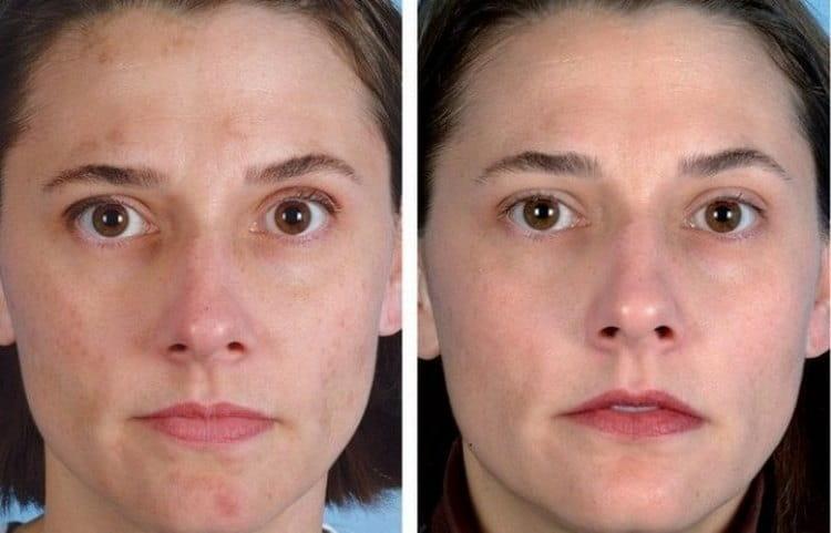 Профессиональная чистка лица у косметолога помогает избавиться даже от пигментных пятен.