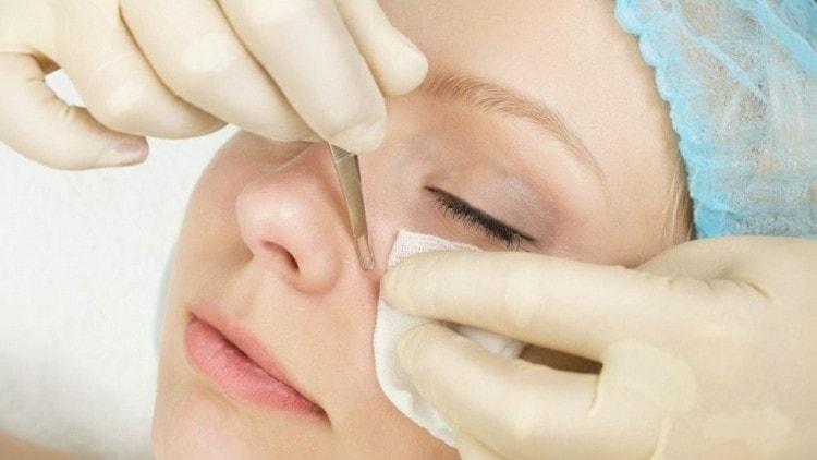 ручная чистка лица у косметолога считается самой болезненной.