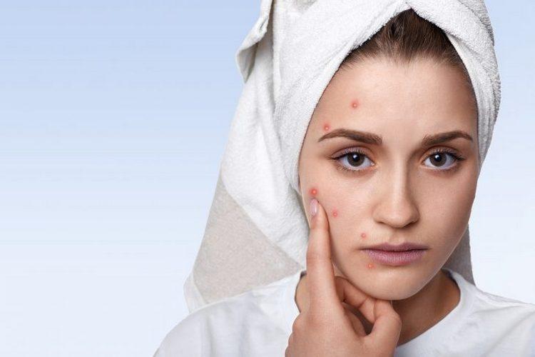Важно подумать над тем, стоит ли делать чистку лица у косметолога, ведь такая процедура имеет некоторые противопоказания.