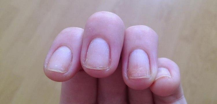 Важно также знать, нужно ли давать ногтям отдохнуть при наращивании.