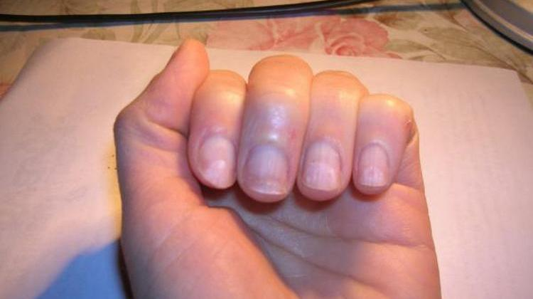 После акрила и геля ногти могут выглядеть достаточно плохо.