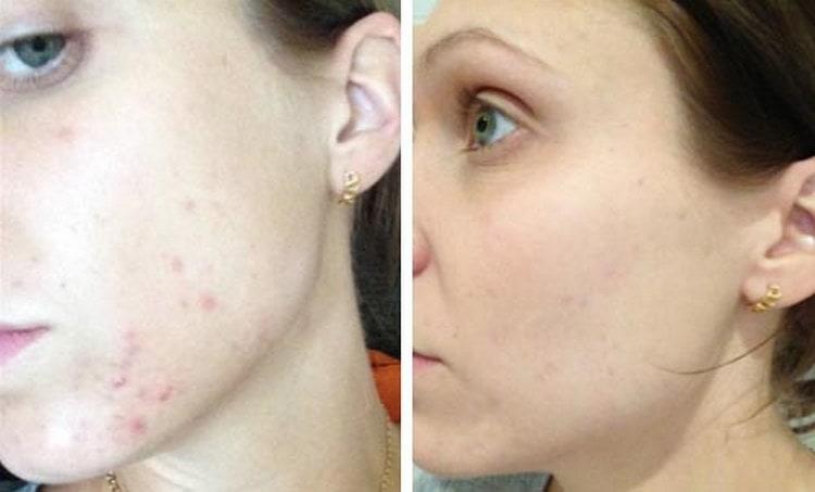 Посмотрите фото до и после комбинированной чистки лица.