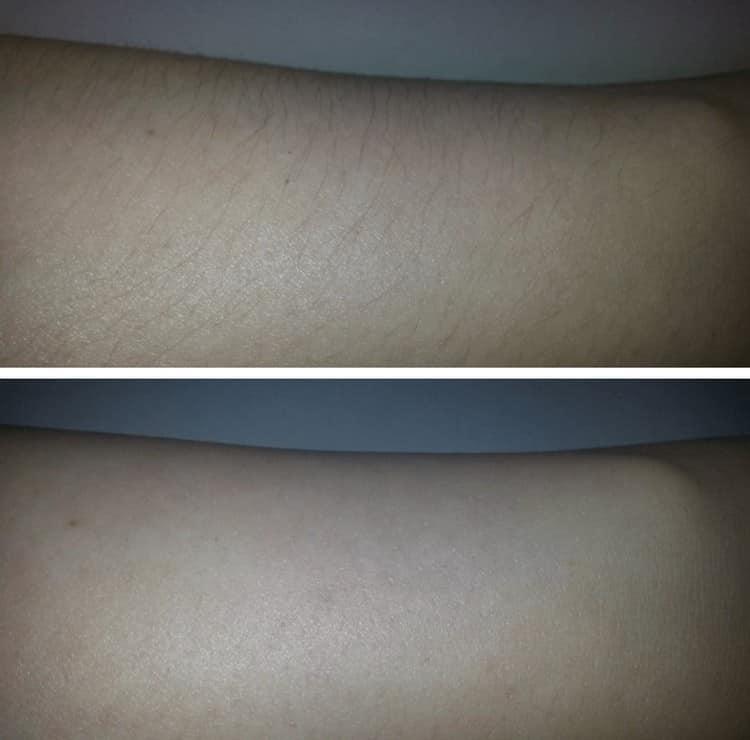 лучше все-таки использовать крем для чувствительной кожи.