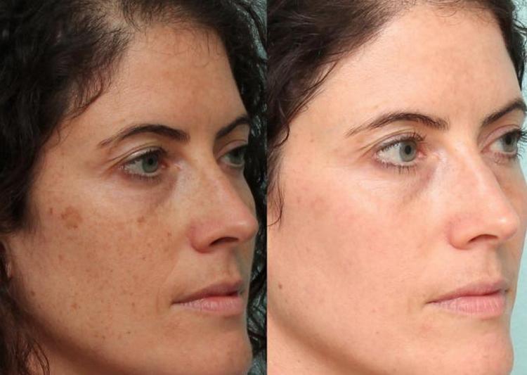 Крем помогает избавляться от пигментации на лице.