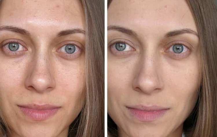 Самый лучший крем для лица каждая женщина определяет сама.