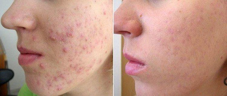 При проблемной кожи важно не просто подобрать хороший питательный крем для лица, но и такой, чтобы помог избавиться от угревой сыпи.
