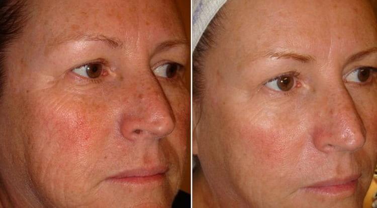 Перепробовала много кремов, которые считаются лучшими для лица после 50.