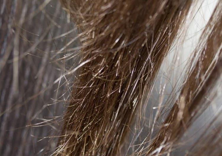 Жирные маски для сухих волос особенно подойдут тем, кто столкнулся с проблемой секущихся кончиков.
