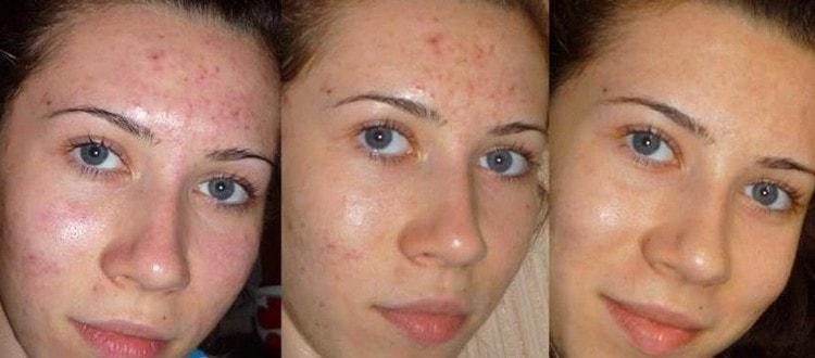 Посмотрите фото до и после механической чистки лица.