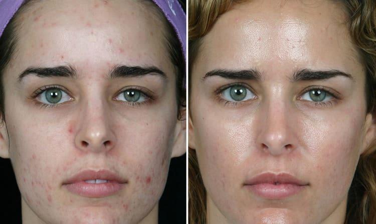 Посмотрите также видео до и после механической чистки лица.