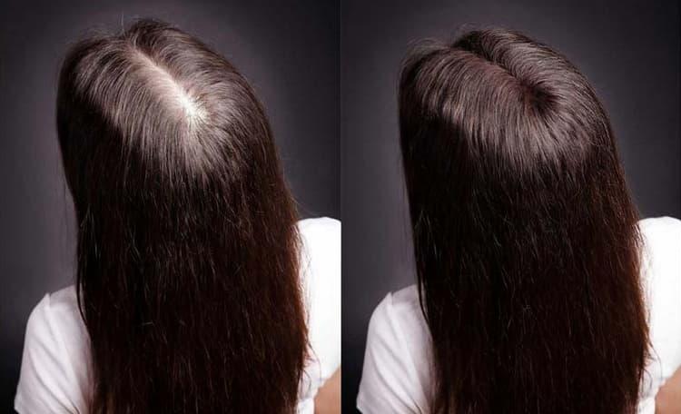 Посмотрите фото до и после проведения мезотерапии волос.