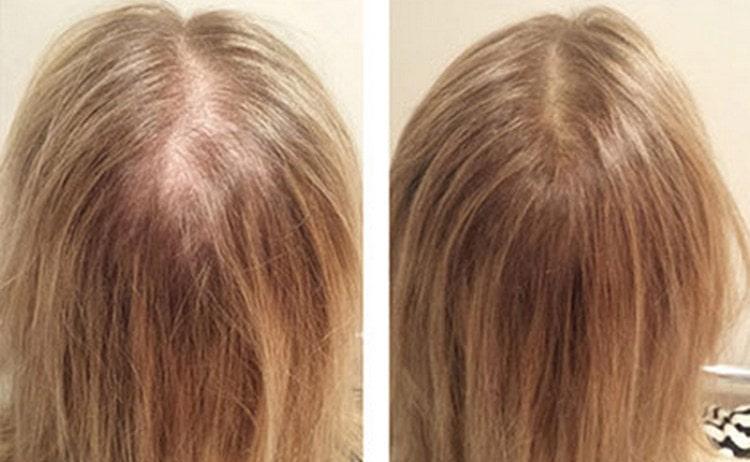 Посмотрите также видео о мезотерапии для волос.