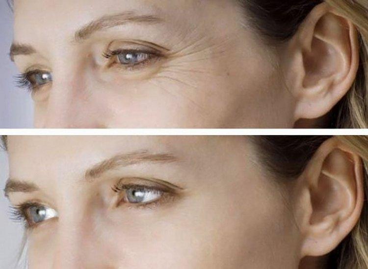А вот фото до и после мезотерапии лица.