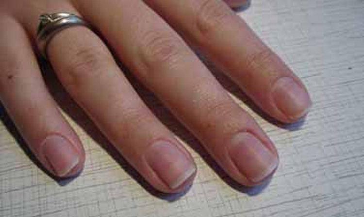 А вот фото ногтей после наращивания акрилом.